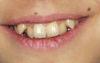 Zaradenie očných zubov